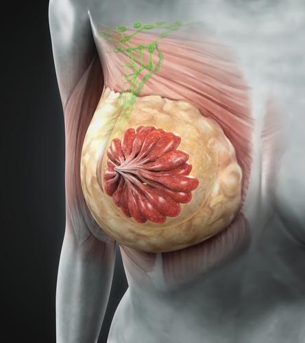 stadi tumore al seno
