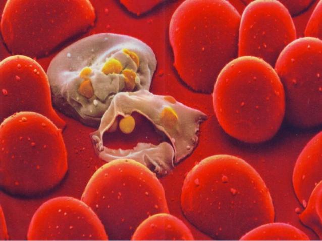 Analisi per i parassiti nel corpo umano di goccia di sangue - 1stauto.ru