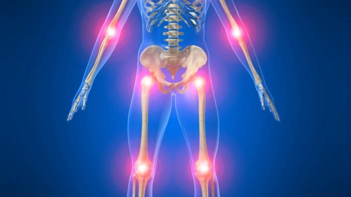 Patate da osteochondrosis cervicale