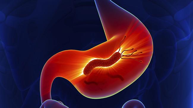 Tumore allo stomaco: fattori di rischio, sintomi, diagnosi, cura e prevenzione