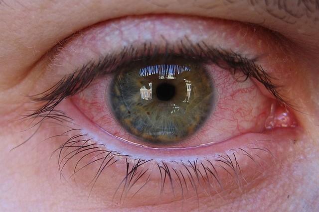 841dc10b71 Occhi rossi: cause, sintomi, rimedi e prevenzione - Meteo Web