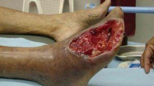Krokodil: la droga mangia carne è arrivata drammaticamente anche in Italia