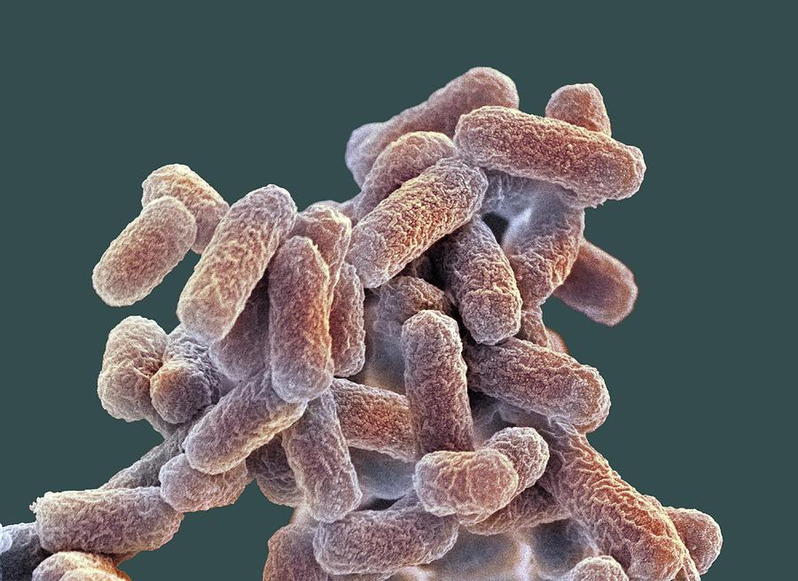 batteri e.coli