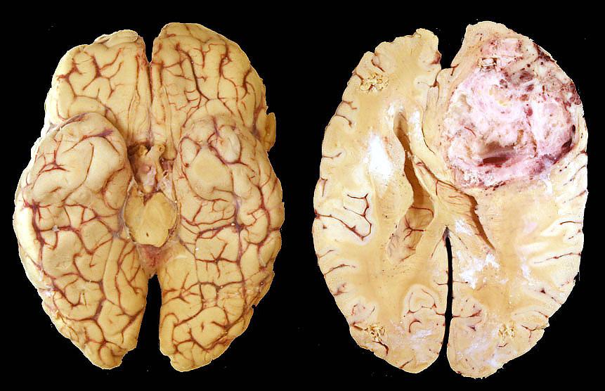 tumore sistema nervoso centrale