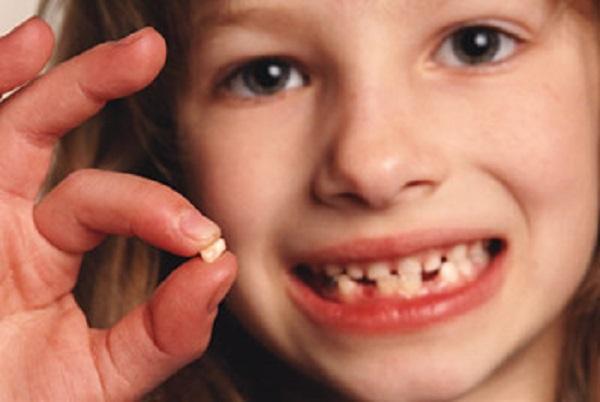 Importanza dei denti da latte ecco perch fondamentale - Immagini dei denti da colorare ...
