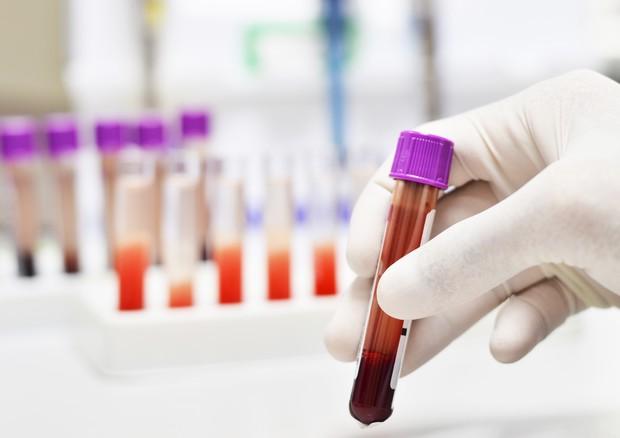 biopsia liquida tumori