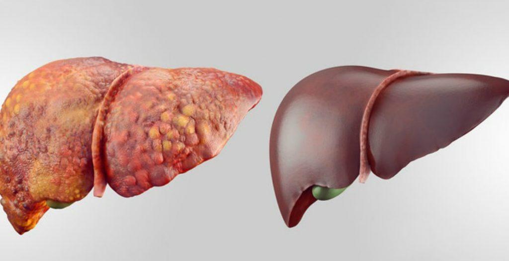 fegato e alcol