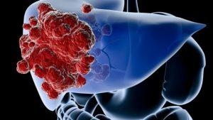 Tumore al fegato: sintomi, fattori di rischio, diagnosi, cur