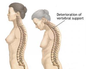 La terapia ormonale nella menopausa aiuta a ridurre l'iperci