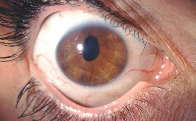 patologia occhio