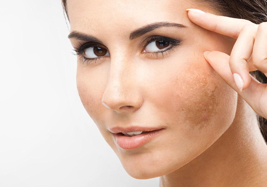Macchie Di Unto Sulla Pelle macchie sul viso: come eliminarle? ecco 5 consigli utili in