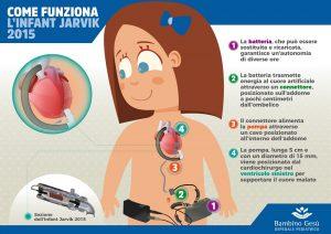 Medicina: mini cuore artificiale salva la vita di una bimba