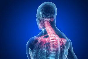 Cervicale infiammata: come dormire senza problemi