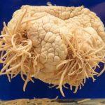 Ameba mangia cervello