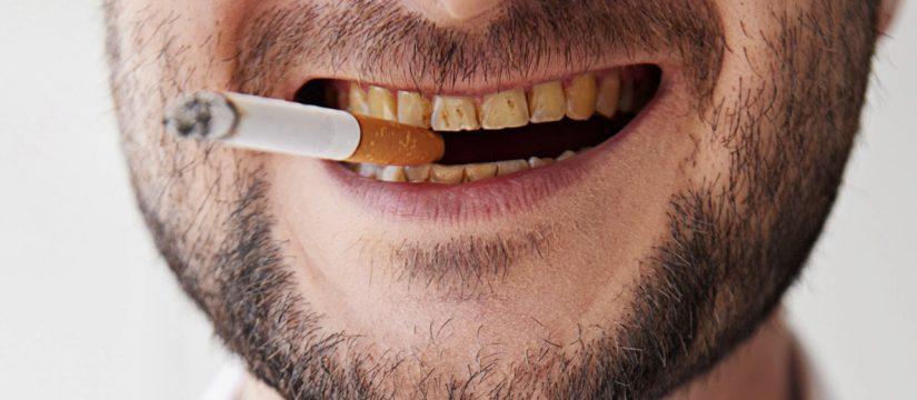 fumo sigaretta denti