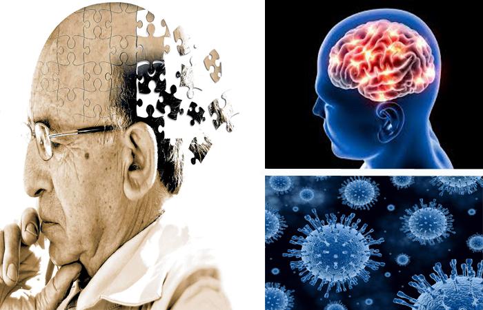 herpes virus alzheimer