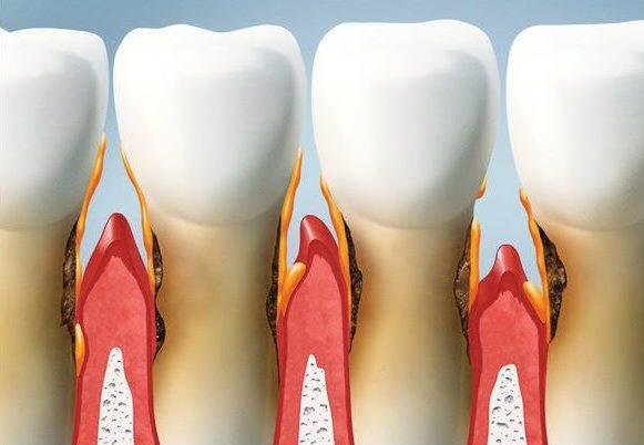 parodontite alzheimer