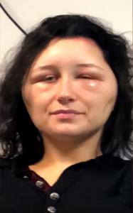 allergia tinta capelli
