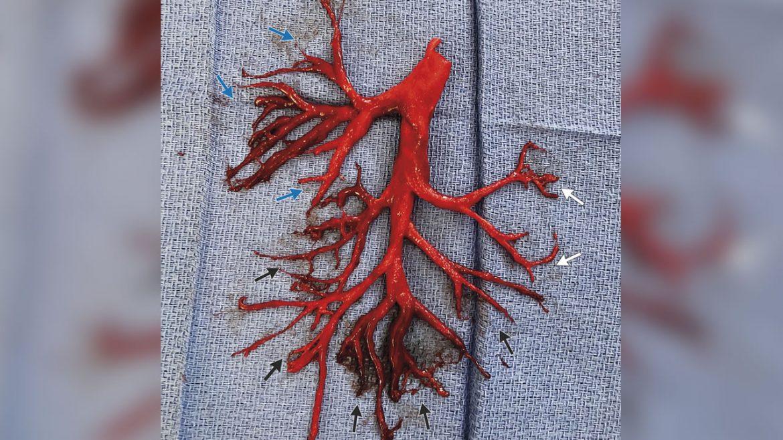 tossisce forte albero bronchiale