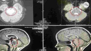 tumore cervello sparisce