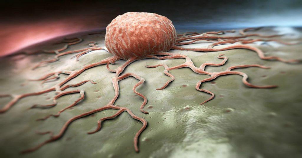 tumori cancro cellula