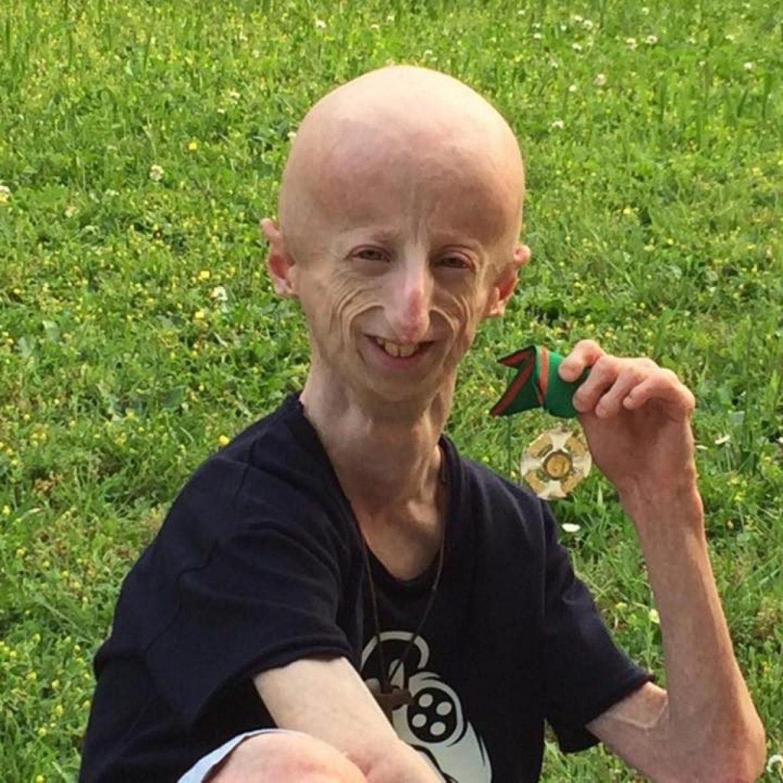 sammy basso progeria