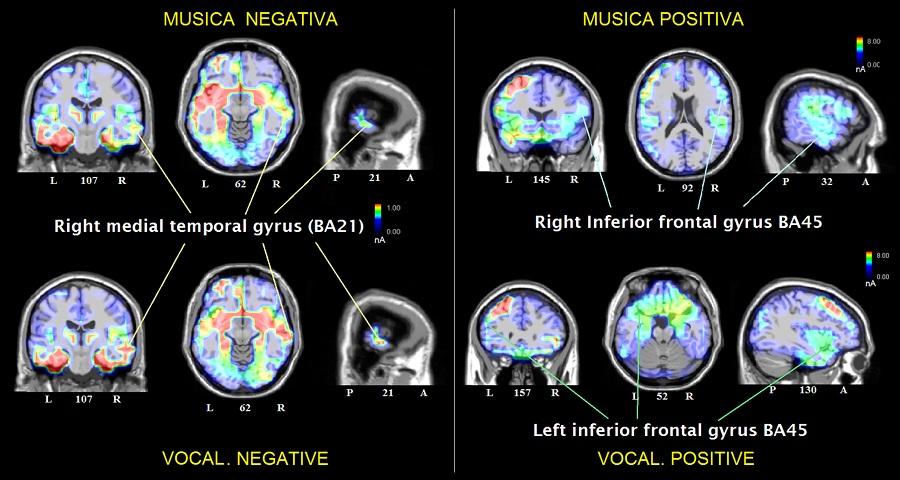 Attivazioni cerebrali registrate durante l'ascolto di musica (positiva o negative), e vocalizzazioni (positive e negative)