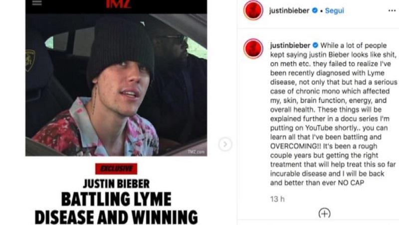 Justin Bieber malattia