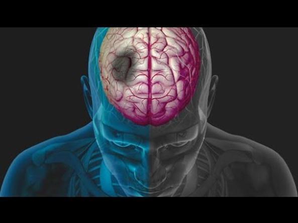 edema cerebrale cervello