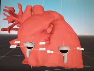 cardiochirurgia pediatrica