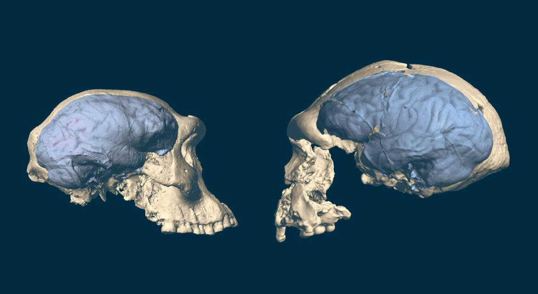 cervello umano scimmie