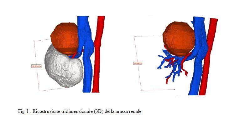 3D massa renale