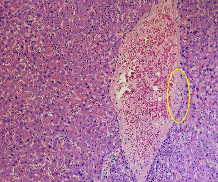 fegato covid