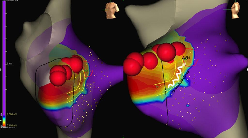 mappa voltaggio elettrico del cuore