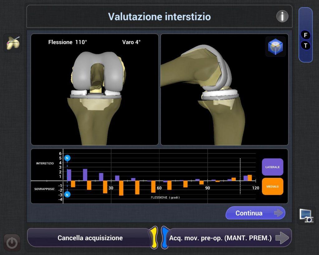protesi ginocchio con robot